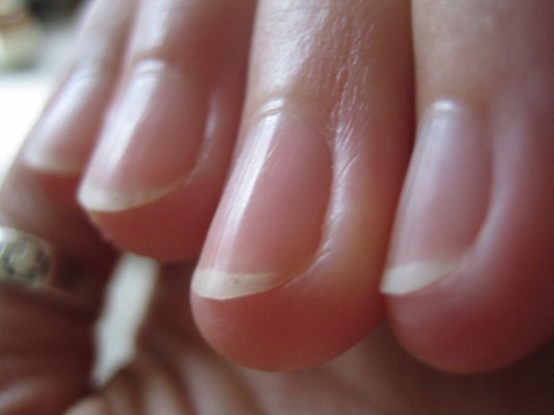 Merawat kutikula jari