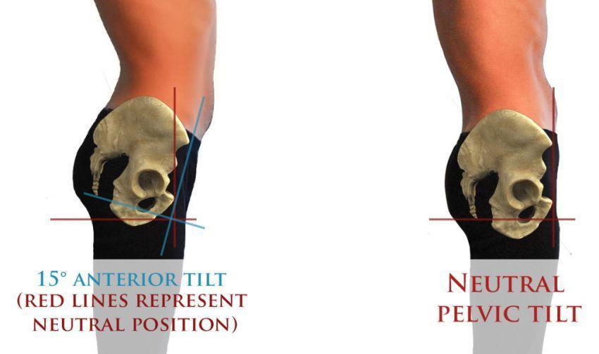 Panggul normal yang di sebelah kanan