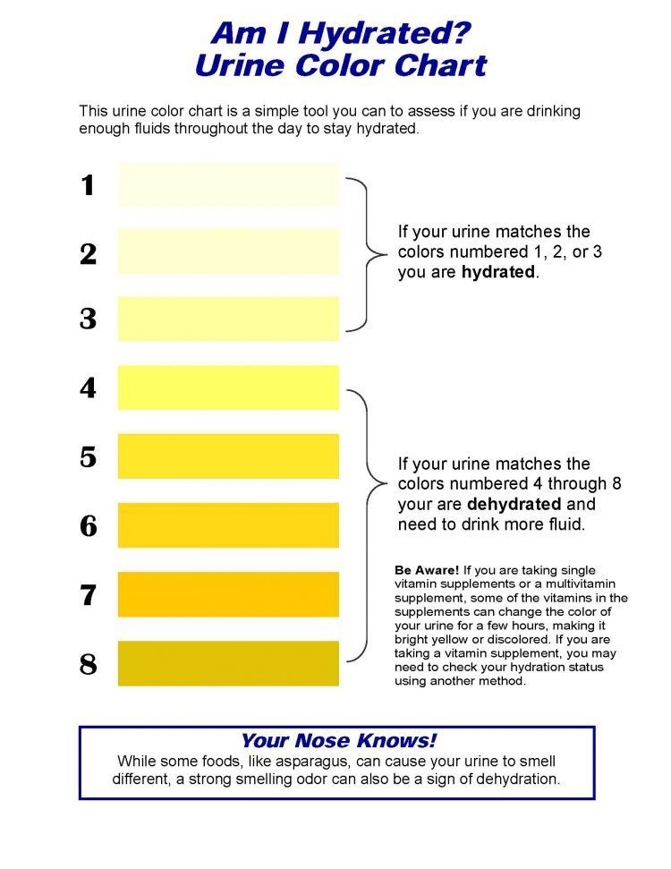 Kalau warnanya kuning gelap, perbanyak minum air putih