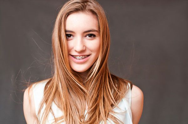 beautiful-girl-smiling-with-braces