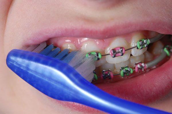 Rajin membersihkan gigi sangatlah penting