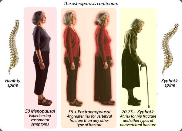 Menopause juga dekat dengan osteoporosis