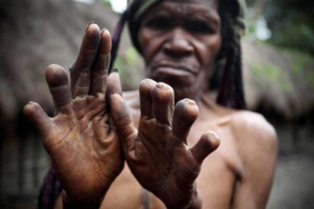 Hukum Adat Potong Jari suku Dani