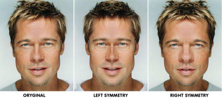 Simetri wajah