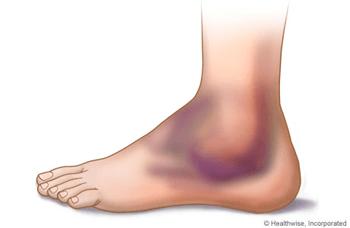 pembengkakan yang terjadi pada pergelangan kaki
