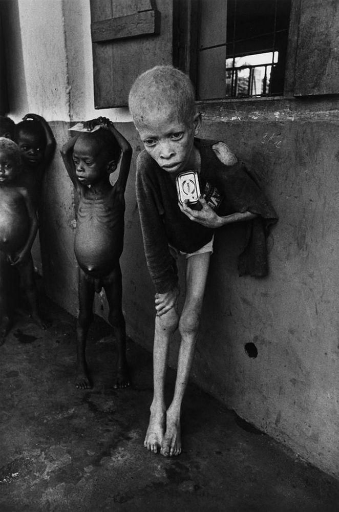 albino di biafra