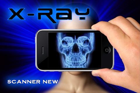 Xray Scanner Camera