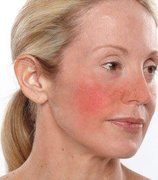 skin inflamation 101
