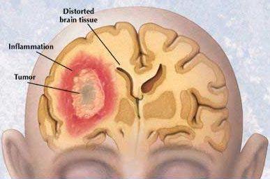 Anti tumor